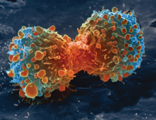 Lung_cancer_cell_during_cell_division-NIH.jpg