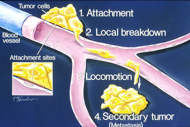 800px-How_metastasis_occurs_illustration