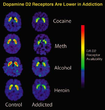 Dopamine_D2_Receptors_in_Addiction.jpg